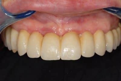 implantologia dentale poco osso riabilitazione finale