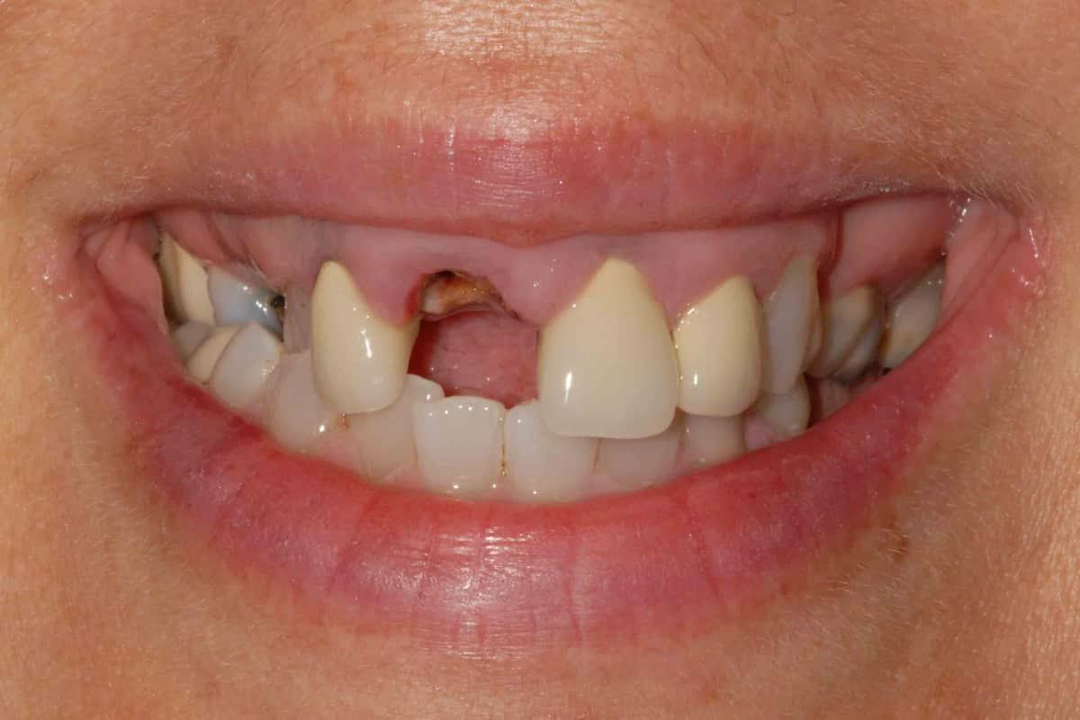 Il sorriso della paziente al momento della prima visita.