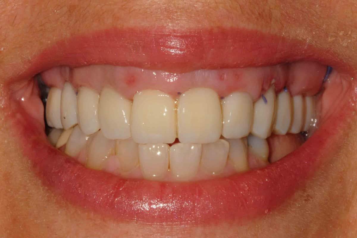 Il sorriso della paziente con il provvisorio dopo 24 ore dall'intervento.