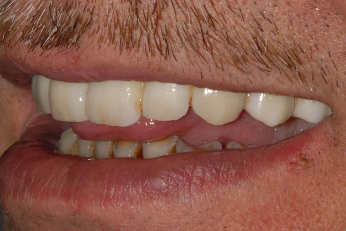 Riabilitazione definitiva dopo 5 anni dall'intervento: il sorriso del paziente.