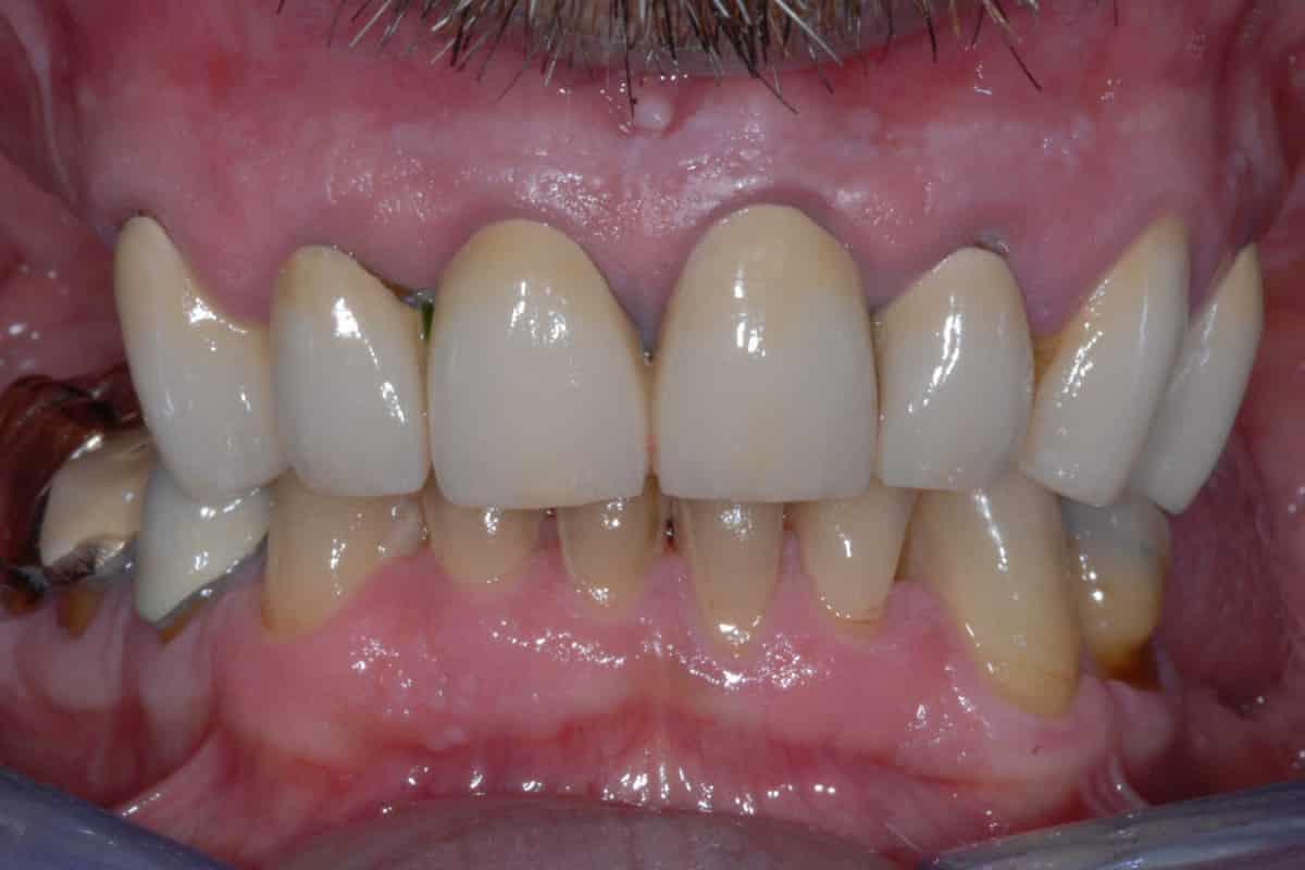 Parodontite e carie: la situazione iniziale.