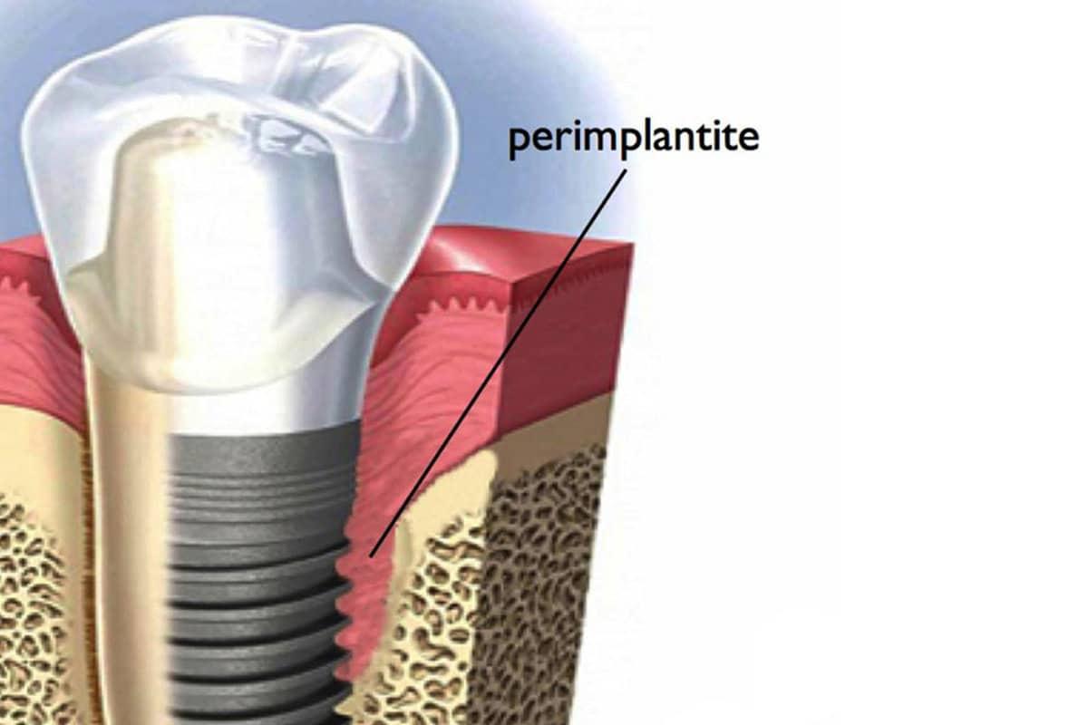 grafica Impianto perimplantite
