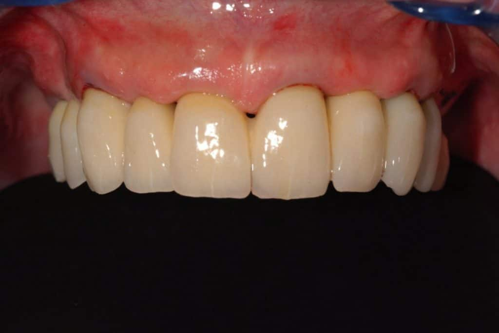 Piorrea. Il provvisorio dopo 24 ore dall'inserimento degli impianti dentali sull'arcata superiore.