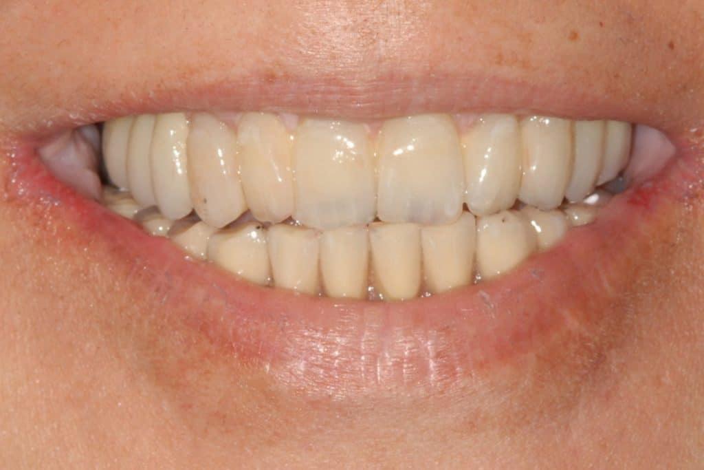 Il sorriso della paziente 1024x683 - Piorrea avanzata: carico immediato