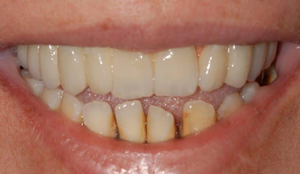 Il sorriso dopo la riabilitazione dell%E2%80%99arcata superiore 1024x597 - Piorrea avanzata: carico immediato