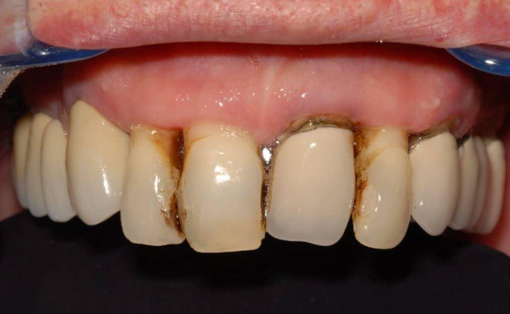 PIorrea. La situazione iniziale dell'arcata superiore: parodontite avanzata.