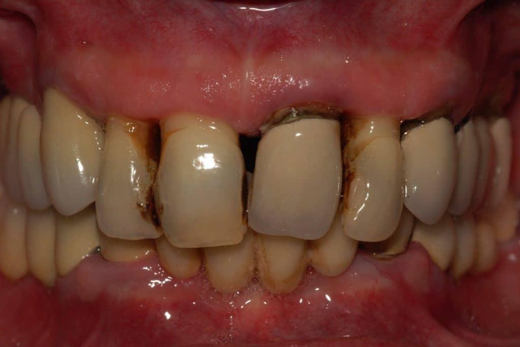 Parodontite avanzata la situazione iniziale 1024x683 - Piorrea su entrambe le arcate implantologia OnlyOne®