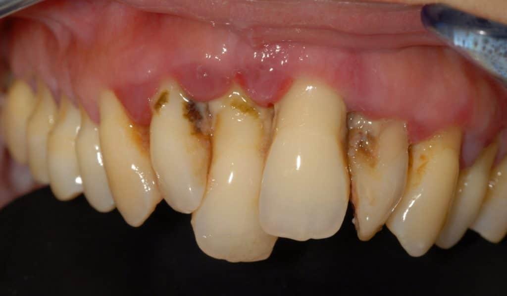 Parodontite avanzata sull%E2%80%99arcata superiore la situazione iniziale 1024x597 - Piorrea avanzata: carico immediato