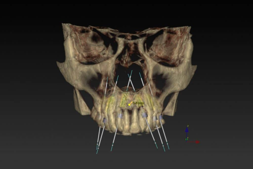Piorrea. Pianificazione chirurgica digitale.