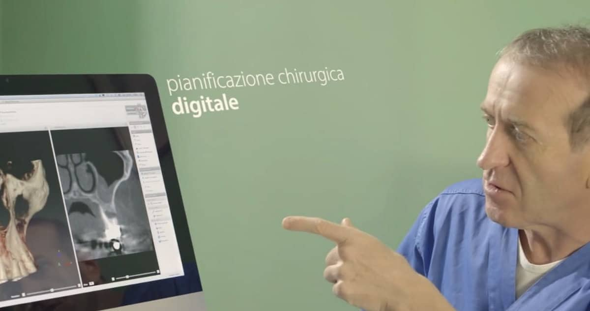 La pianificazione chirurgica digitale