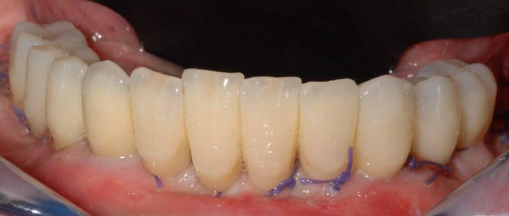 Piorrea. Provvisorio dopo 24 ore dall'inserimento degli impianti dentali sull'arcata inferiore.