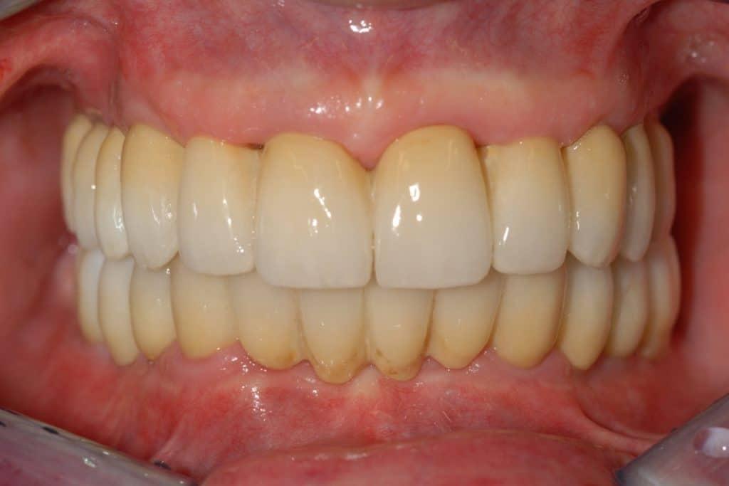 Riabilitazione definitiva di entrambe le arcate a 3 anni dall%E2%80%99intervento 1024x683 - Piorrea su entrambe le arcate implantologia OnlyOne®