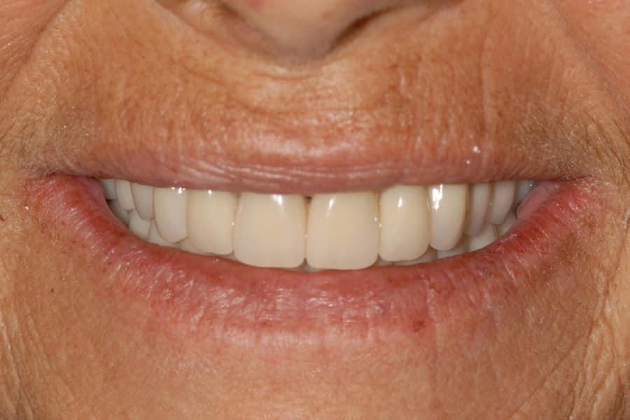 Piorrea il sorriso dopo riabilitazione OnlyOne%C2%AE caso 741 - Caso Clinico di Parodontite grave risolta con OnlyOne