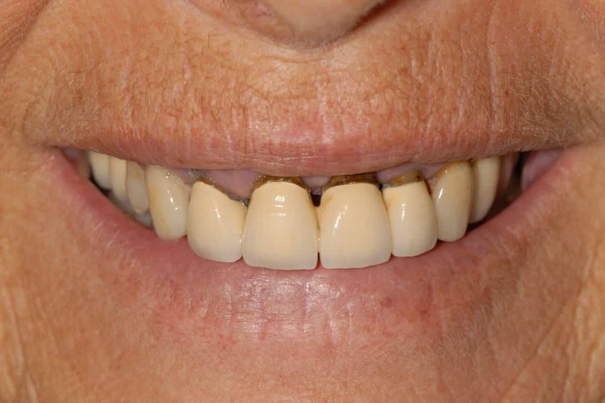 Piorrea il sorriso iniziale della paziente 1 - Caso Clinico di Parodontite grave risolta con OnlyOne