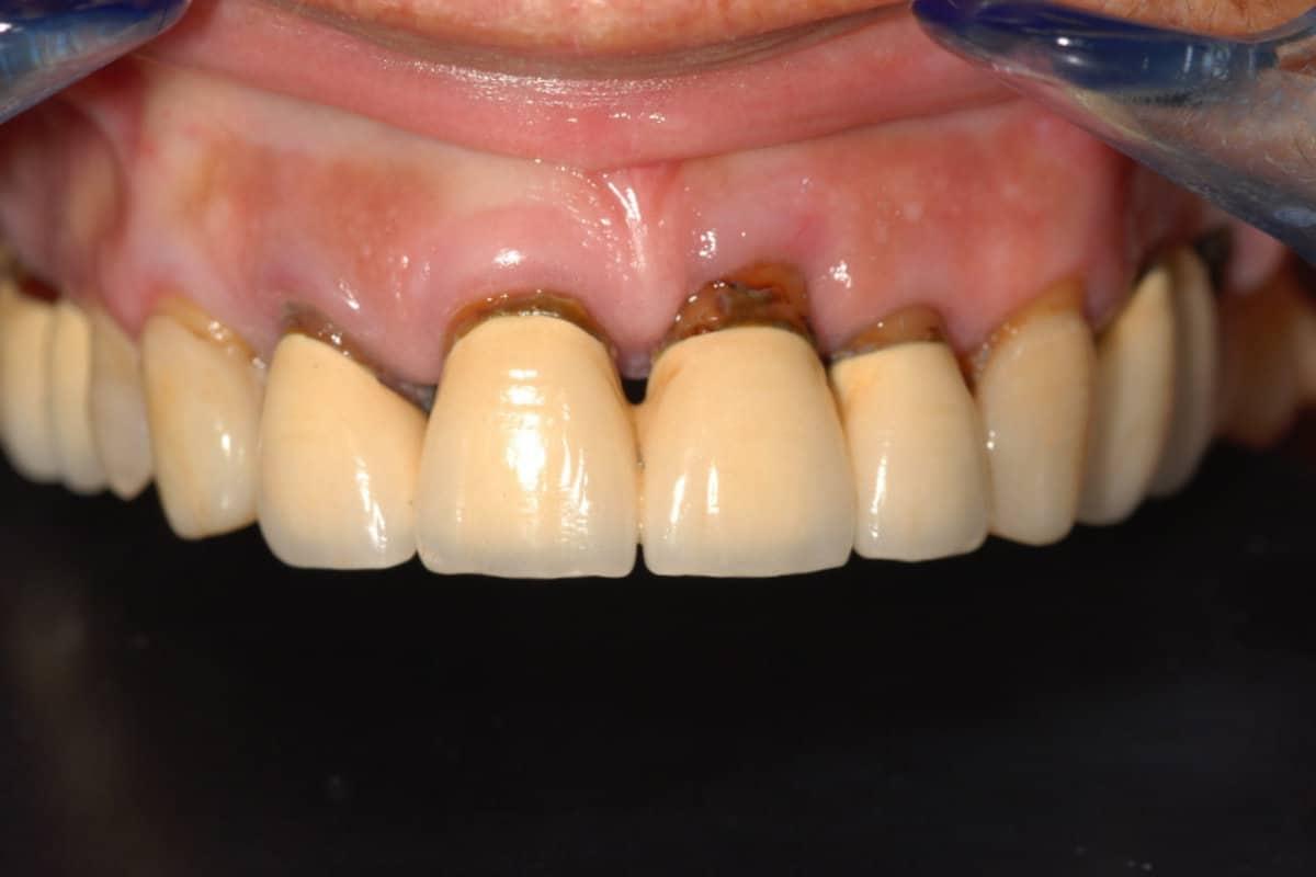 Piorrea la situazione iniziale dell%E2%80%99arcata superiore - Caso Clinico di Parodontite grave risolta con OnlyOne