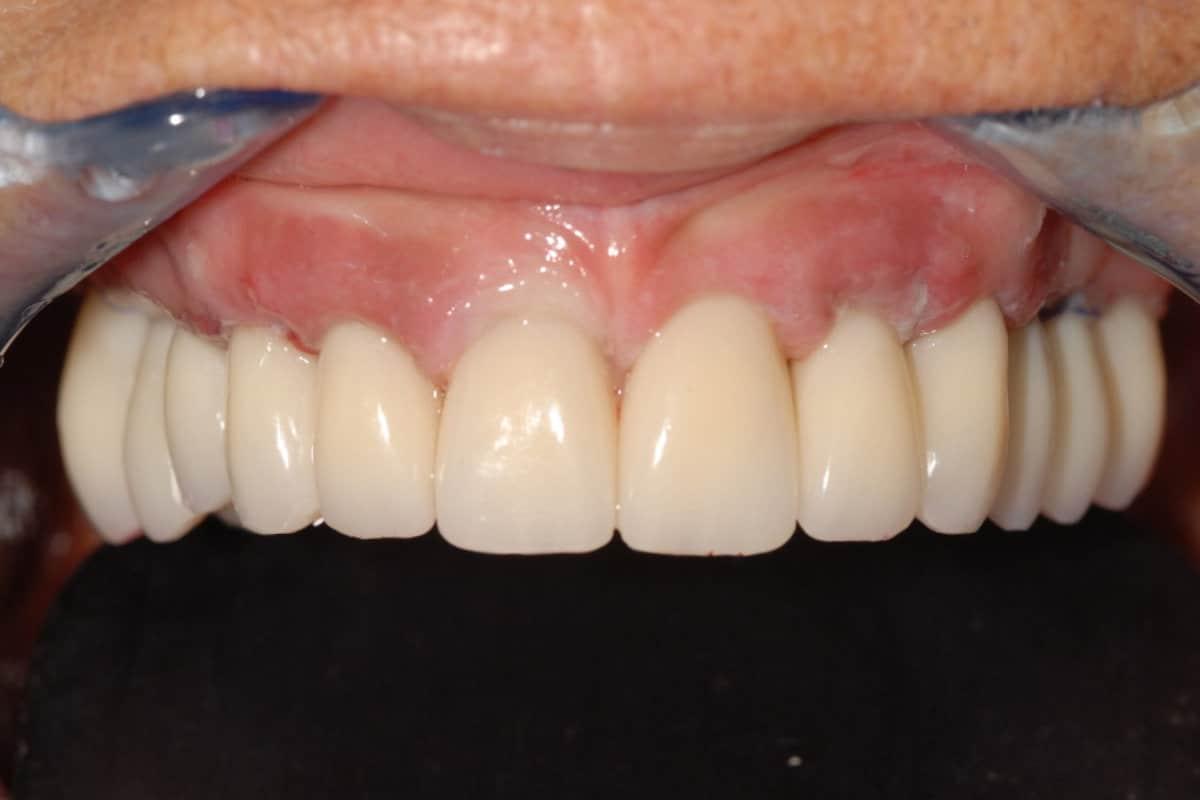 Provvisorio dopo 24 ore dall%E2%80%99intervento di Implantologia OnlyOne. Emergenza dei denti dalle gengive naturali. - Caso Clinico di Parodontite grave risolta con OnlyOne