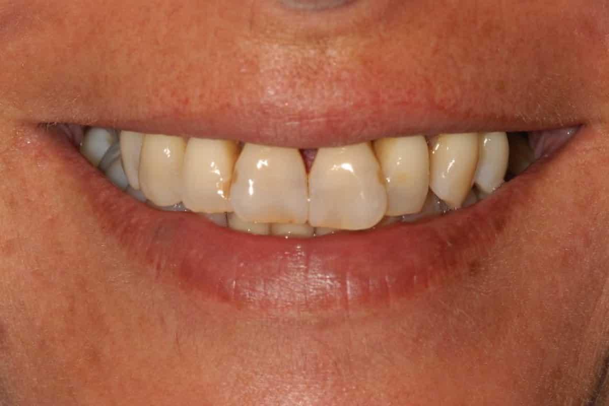 Parodontite il sorriso iniziale - Piorrea e poco osso implantologia OnlyOne®