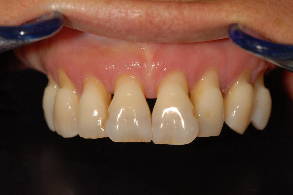 Poco osso e parodontite la situazione iniziale dellarcata superiore - Piorrea e poco osso implantologia OnlyOne®