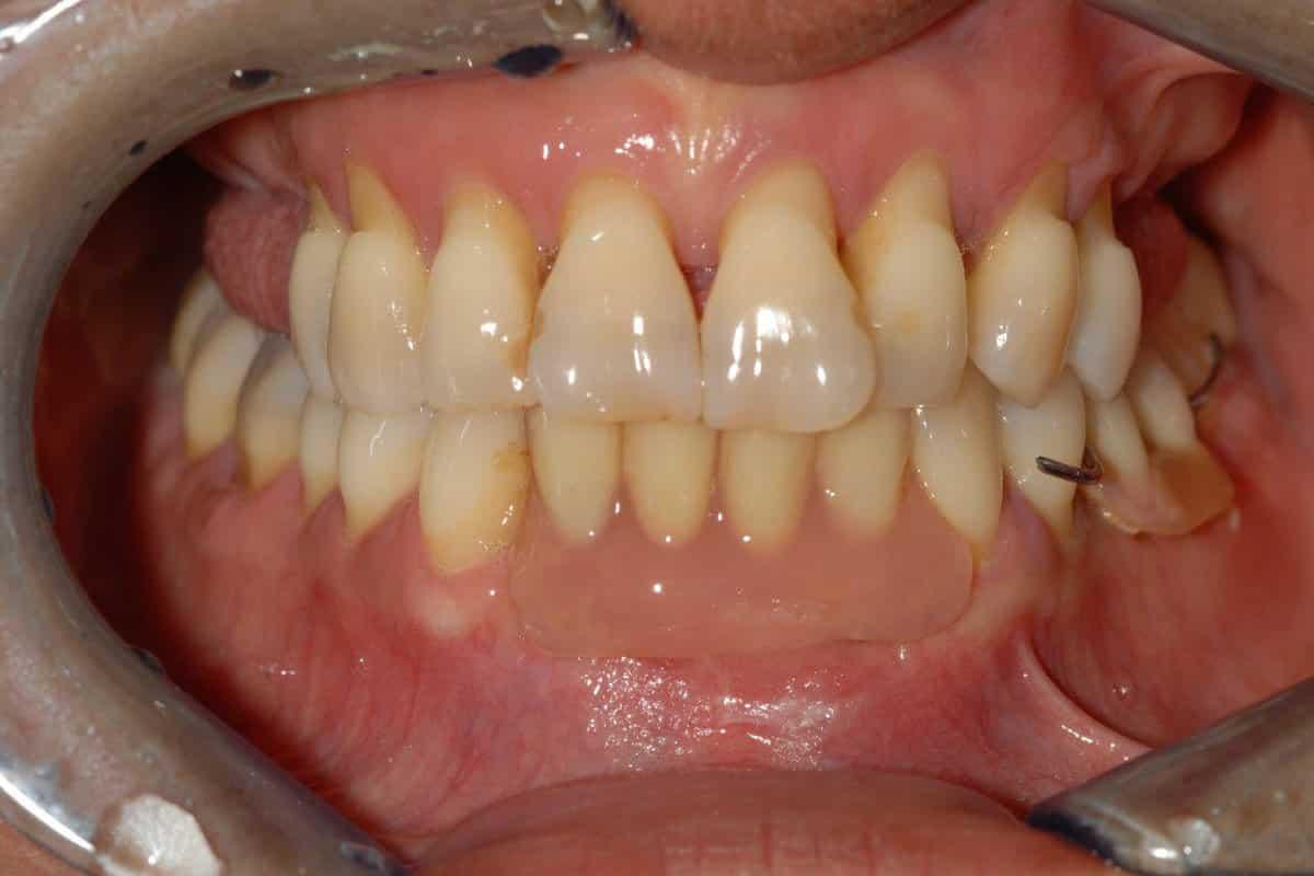 Poco osso e parodontite la situazione iniziale - Piorrea e poco osso implantologia OnlyOne®