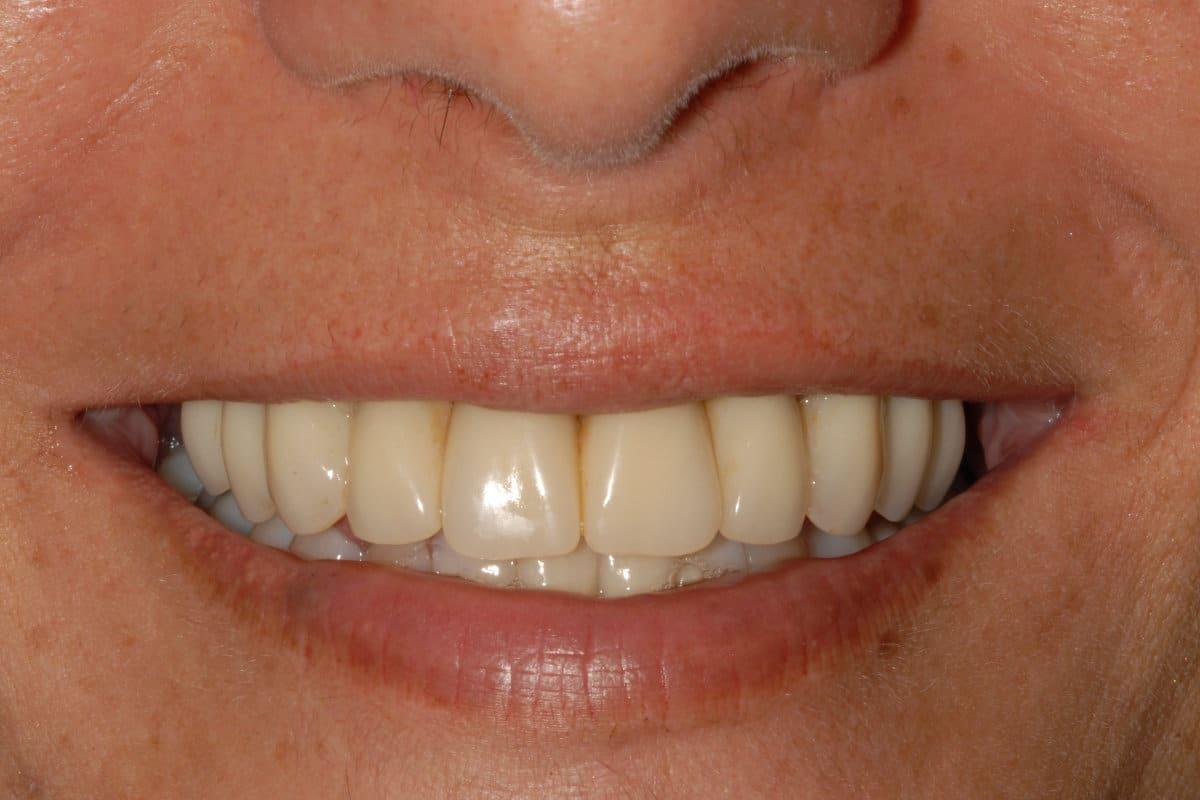Riabilitazione OnlyOne il sorriso finale - Piorrea e poco osso implantologia OnlyOne®
