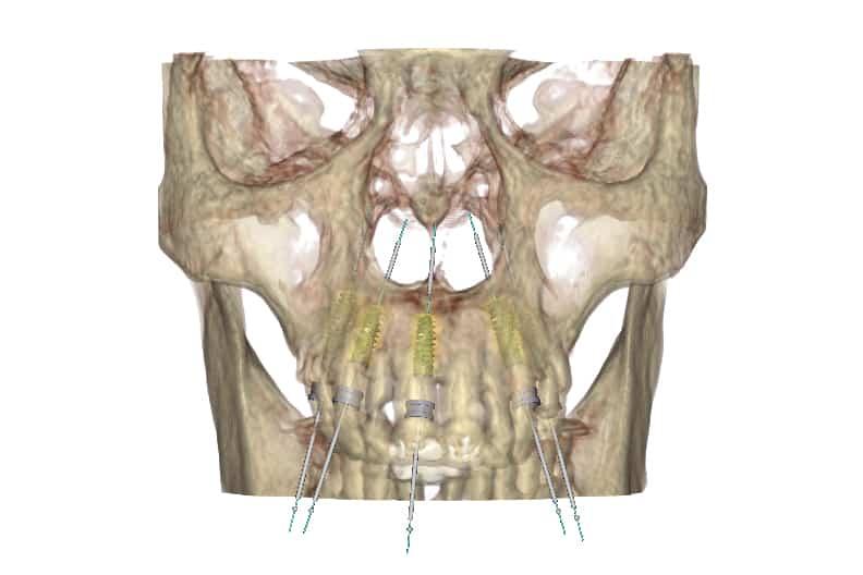 piorrea implantologia estetica: tac arcata superiore