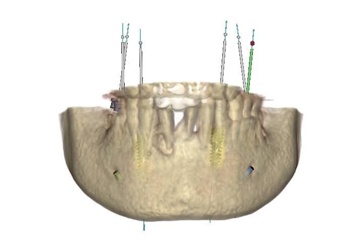 piorrea implantologia estetica: tac mandibola