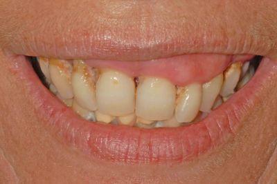 piorrea implantologia estetica: sorriso