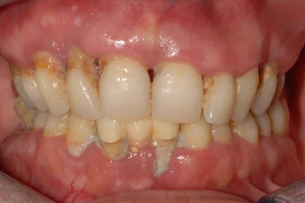 piorrea implantologia estetica: prima