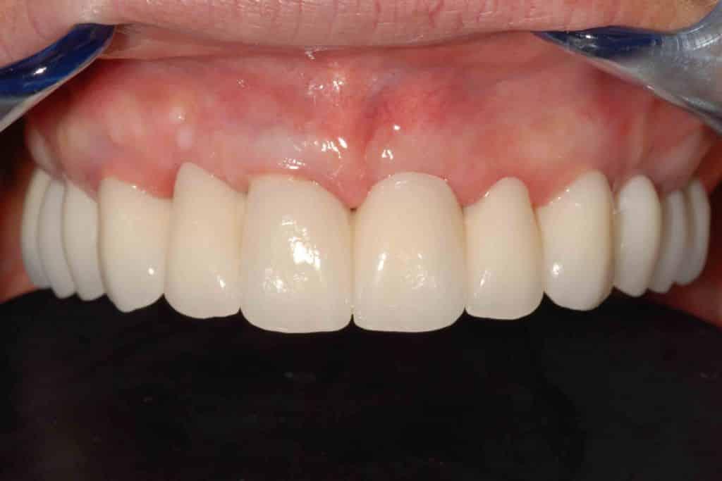 piorrea implantologia estetica, provvisorio