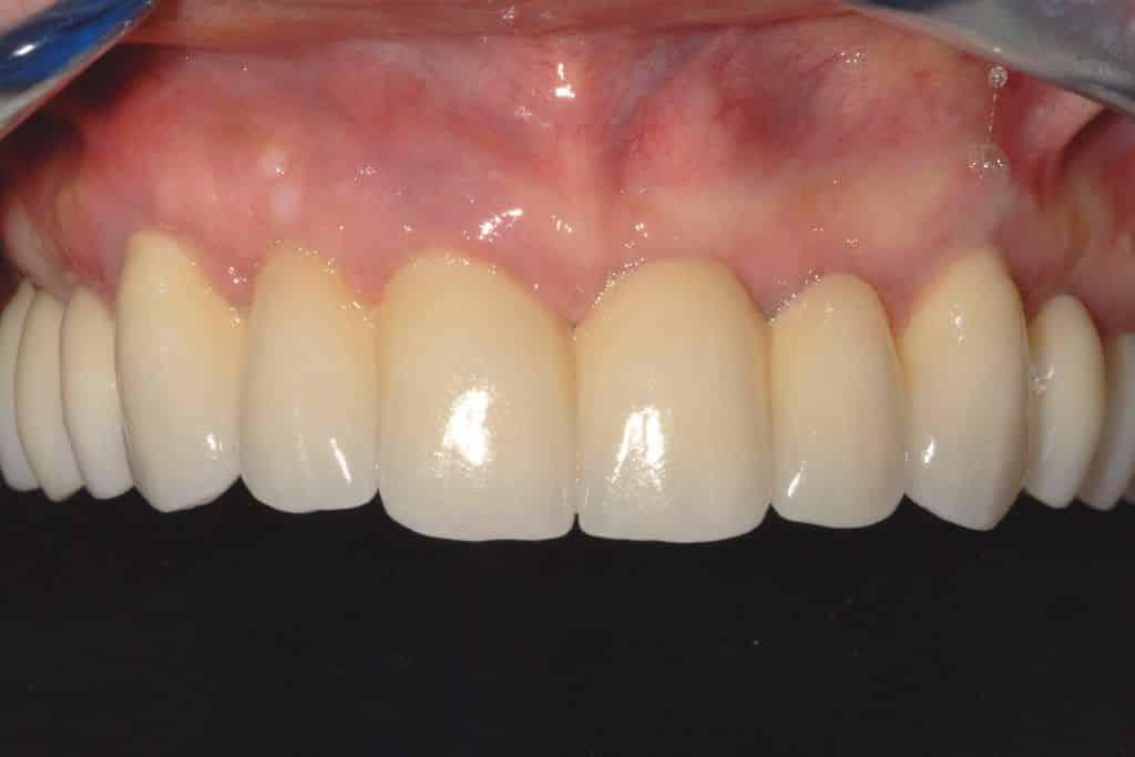 piorrea implantologia estetica: zirconio ceramica