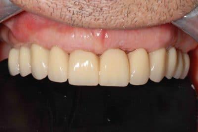 Parodontite, il provvisorio dopo 24 ore dall'intervento.