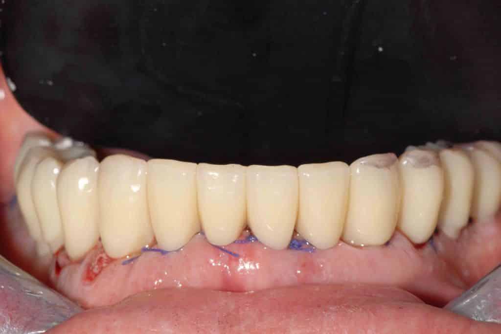 Parodontite, il provvisorio sull'arcata inferiore dopo 24 ore dall'intervento.