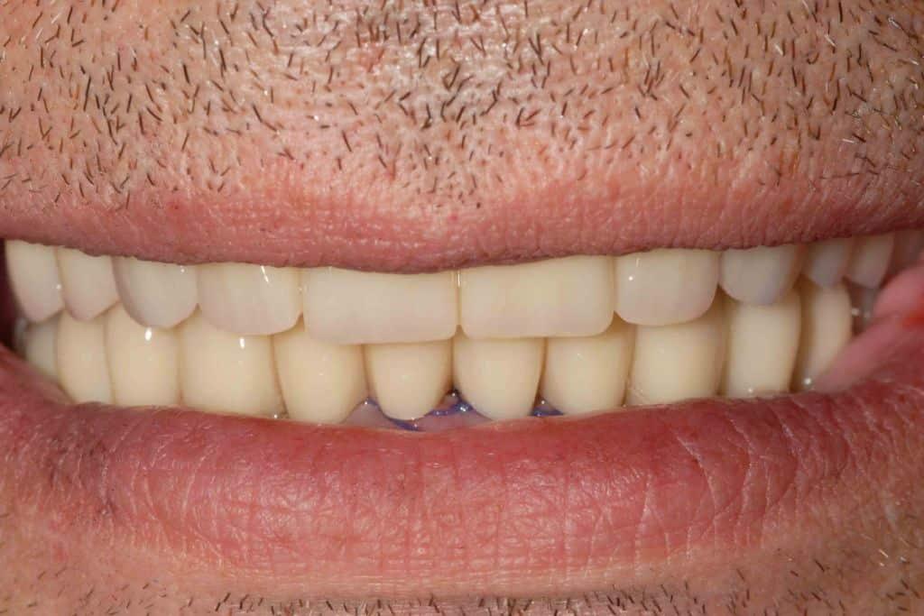 Parodontite, Riabilitazione con protocollo OnlyOne® dopo 24 ore dall'intervento.
