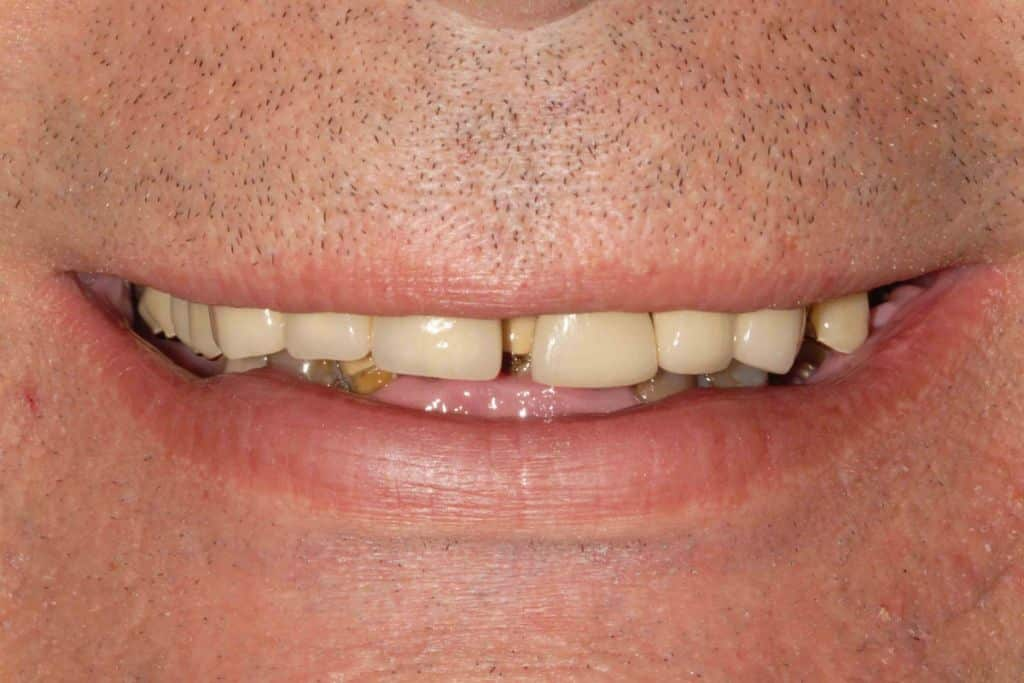 Parodontite, il sorriso iniziale.