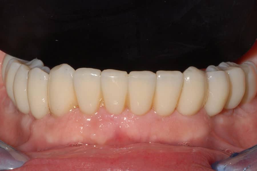parodontite riabilitazione finale