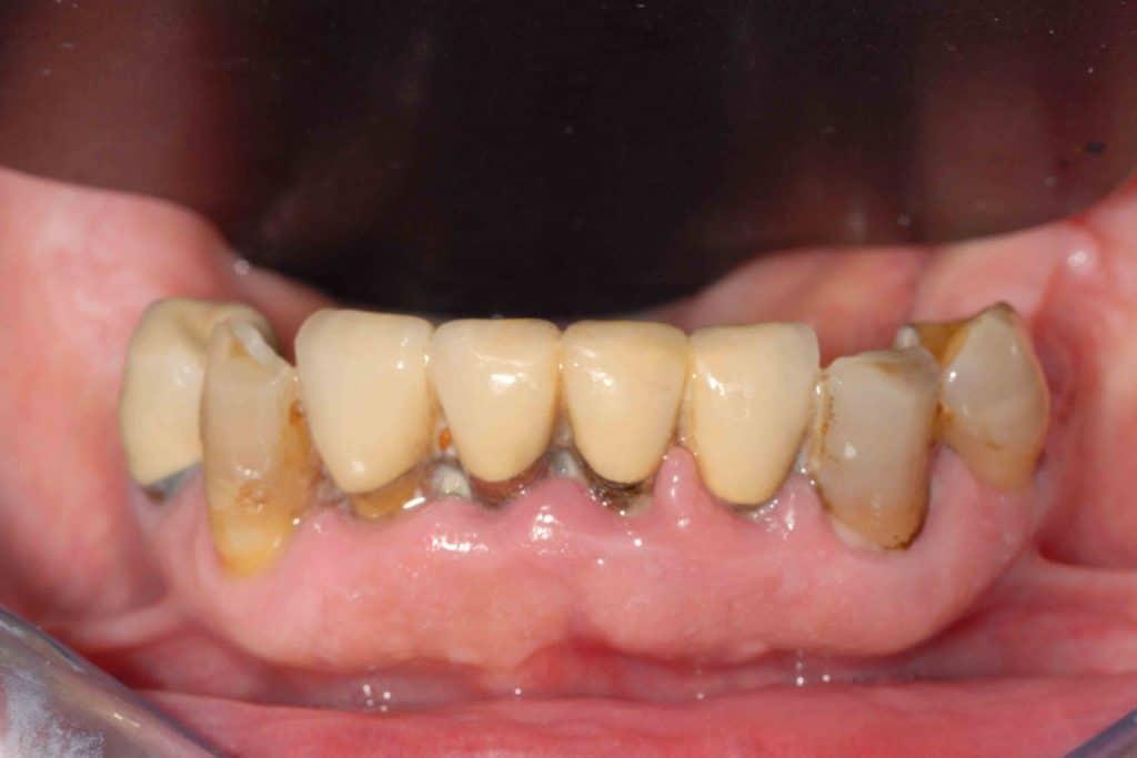 Parodontite: la situazione iniziale arcata inferiore.