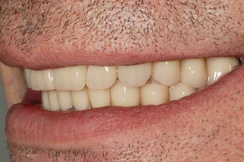 Parodontite, particolare del sorriso con provvisorio su entrambe le arcate.