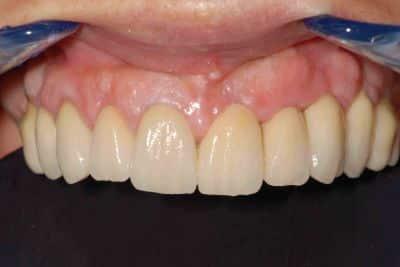 OnlyOne®: emergenza dei denti dalle gengive naturali.