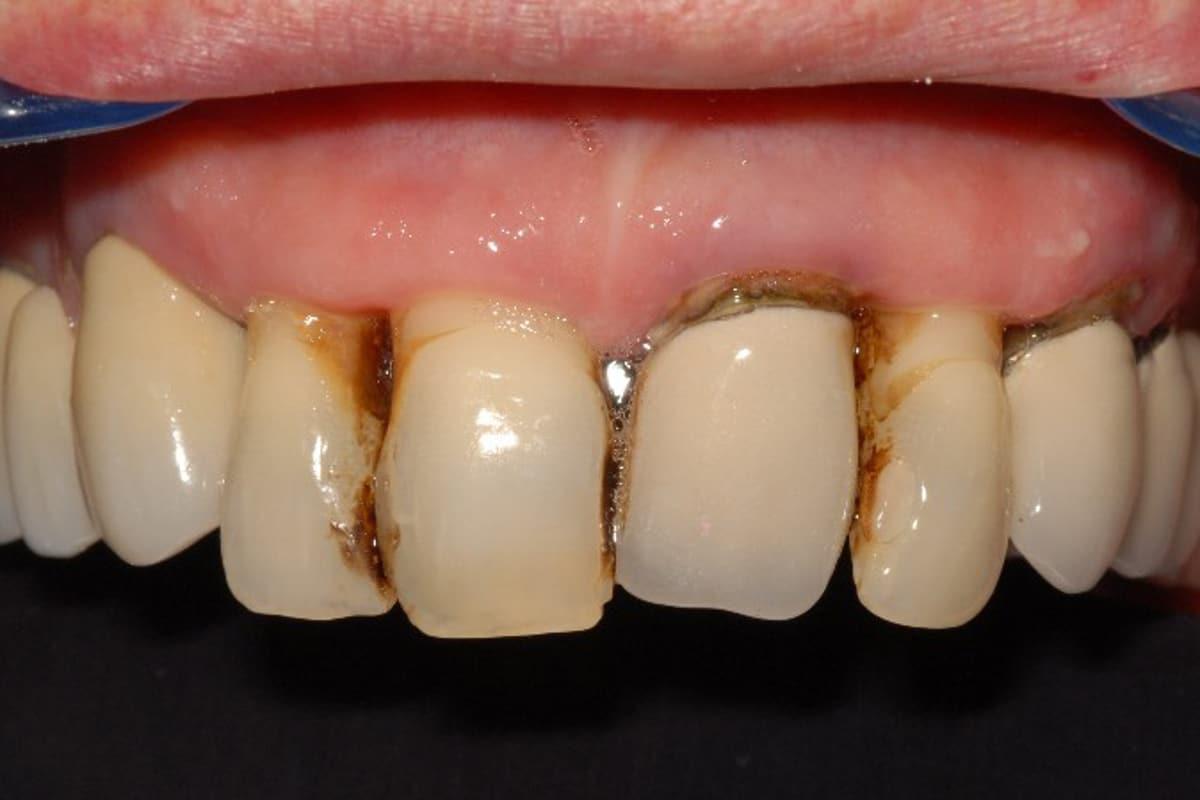 Paziente diabetico prima2 - Impianti dentali controindicazioni