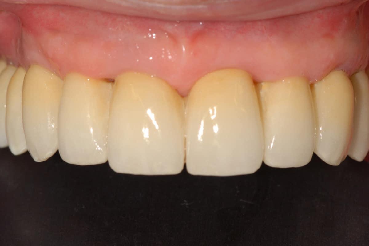 Paziente dopo riabilitazione con impianti dentali - Impianti dentali controindicazioni