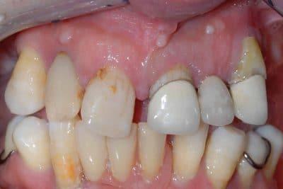 Poco osso e parodontite: la situazione iniziale.