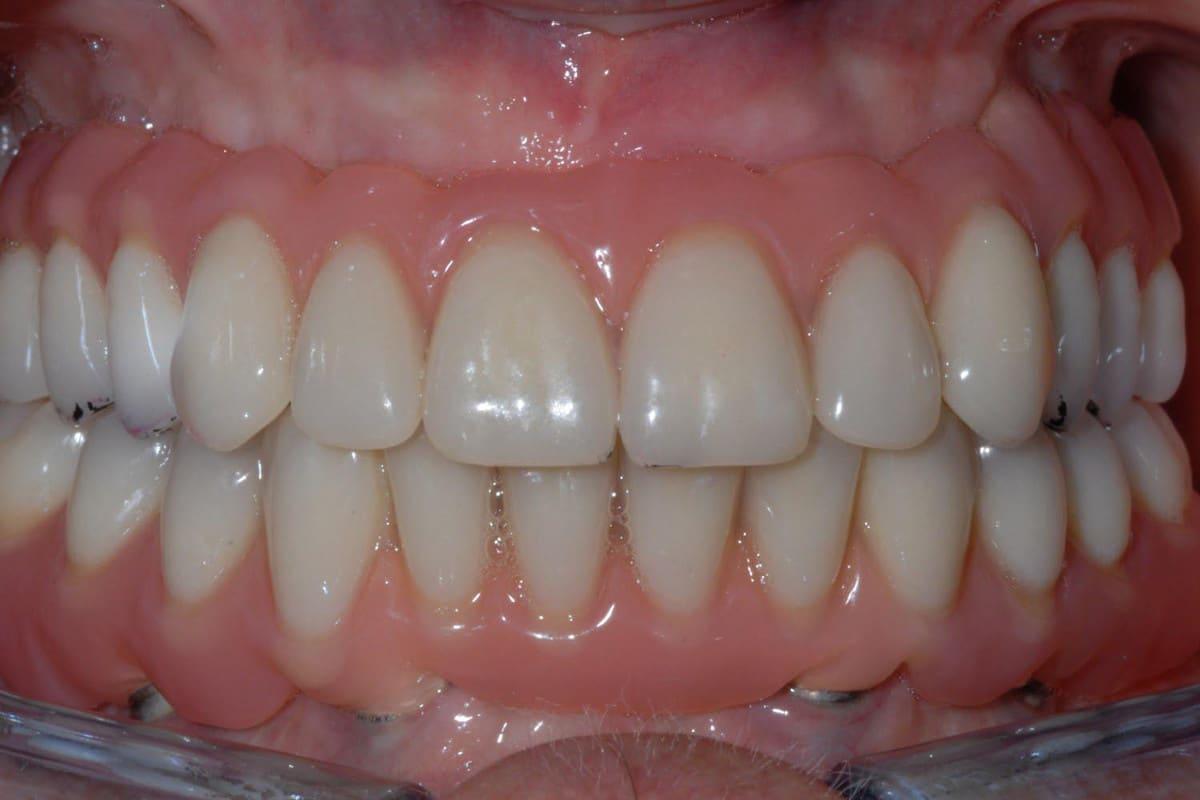 Implantologia dentale senza finta gengiva