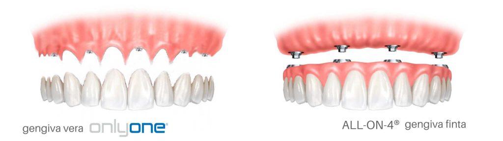 Implantologia dentale senza finta gengiva 1 1024x288 - Implantologia dentale senza finta gengiva