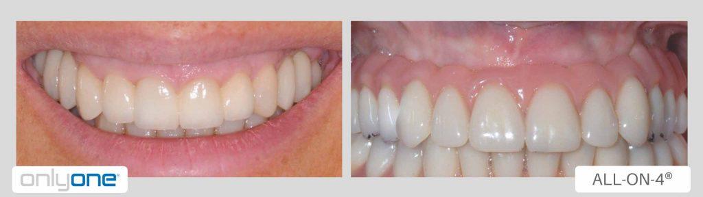 Implantologia dentale senza finta gengiva differenze 1024x288 - Implantologia dentale senza finta gengiva