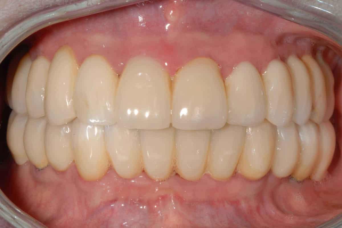 Implantologia dentale senza finta gengiva onlyone