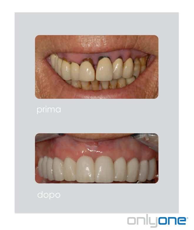 implantologia carico immediato prima e dopo