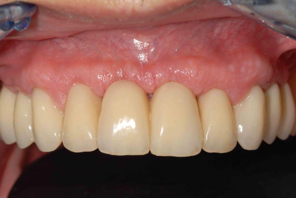 La riabilitazione provvisoria con tecnica OnlyOne® dell'arcata superiore: emergenza dei denti dalle gengive naturali.