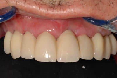 Riabilitazione con protocollo OnlyOne® dopo l'intervento. Particolare dell'arcata superiore.