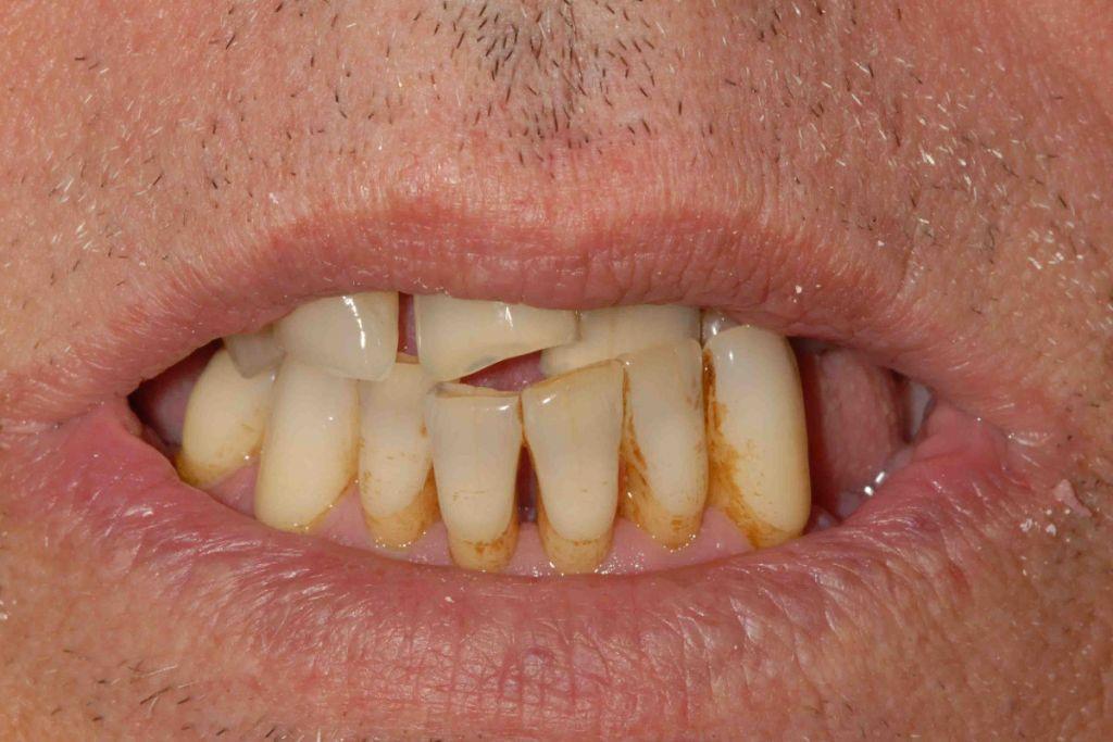 Parodontite avanzata (piorrea): il sorriso iniziale.