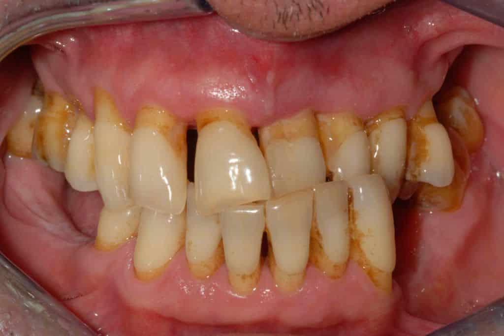 Parodontite avanzata piorrea la situazione iniziale.